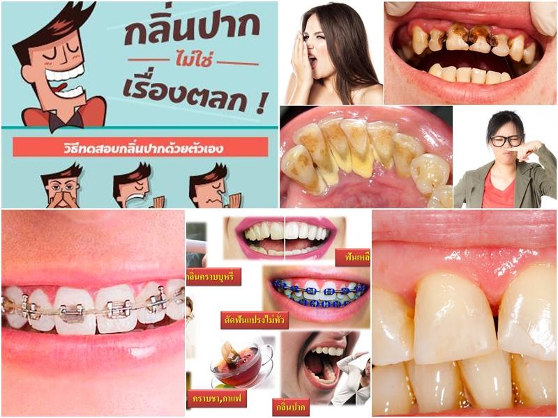 ฟันขาวสวย ลมหายใจหอมสดชื่นหมดปัญหากลิ่นปาก ป้องกันคราบหินปูน คราบบุหรี่กลิ่นบุหรี่